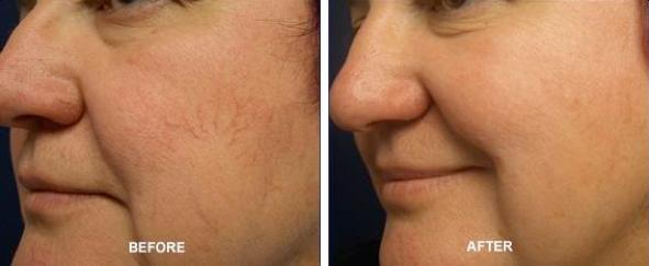 Leucoderma/ Vitiligo Treatment: No More White Spots