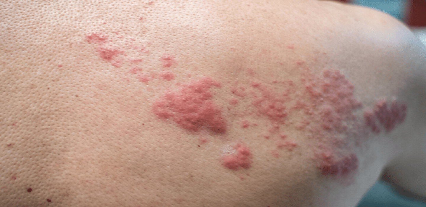 Skin Allergy Treatments