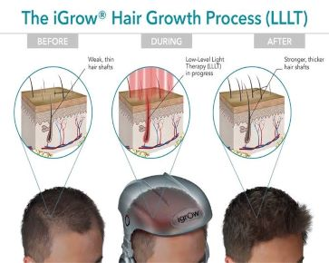 Hair Growth process