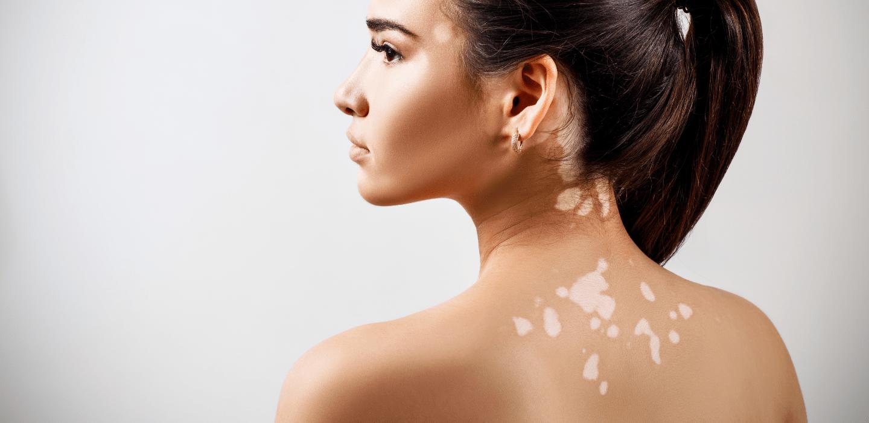Vitiligo Treatment