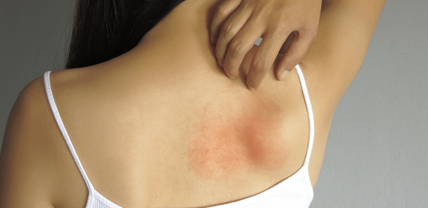 Skin Allergies and Rashes